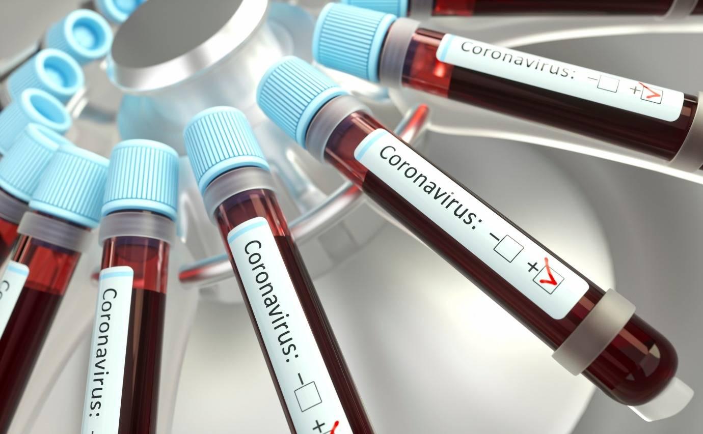 DEU NEGATIVO PRA COVID-19! Teste feito em suspeito que faleceu no início da semana não acusa vírus